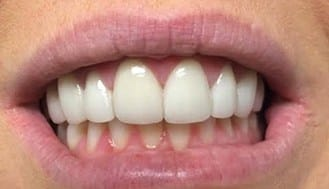 Brilliant white top front teeth