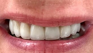 Flawles smile after treatment