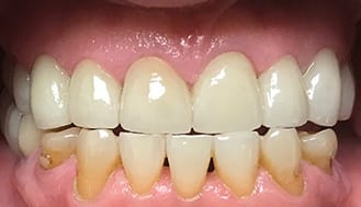 Flawlessly restored and healthy smile