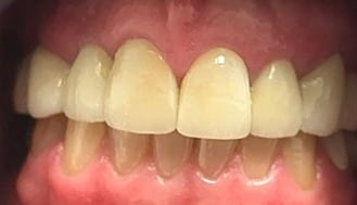 Repaired healthy smile