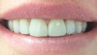 Healthy beautiful smile after treatment