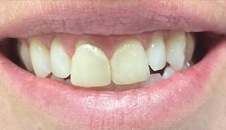 Yellowed and damaged front teeth