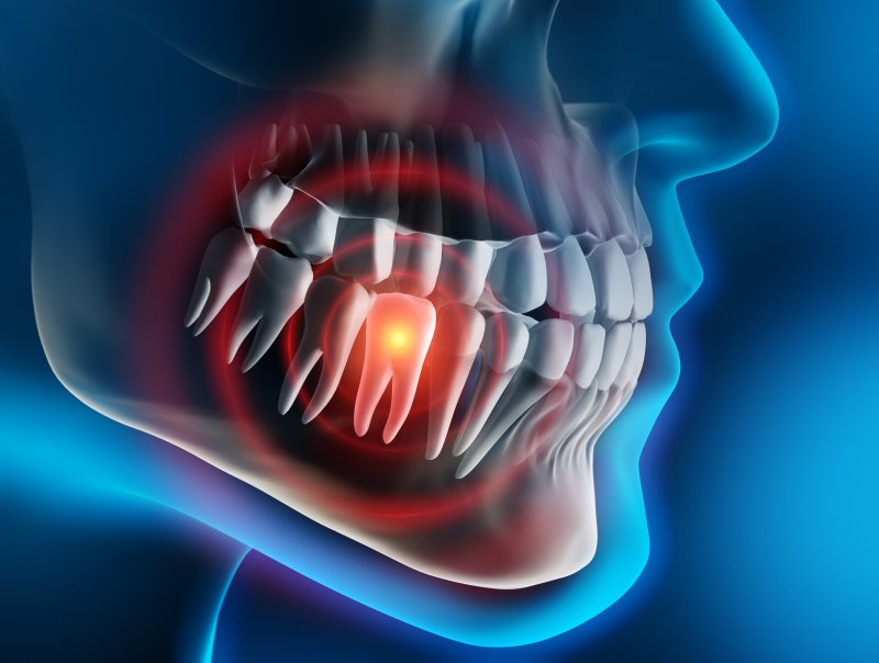 a digital image of tooth pain occurring within a person's mouth